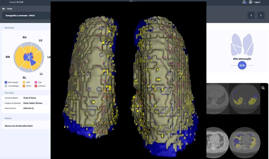 CovidScan: Plataforma desenvolvida por empresa derivada da Coppe começa a ser testada na Fiocruz